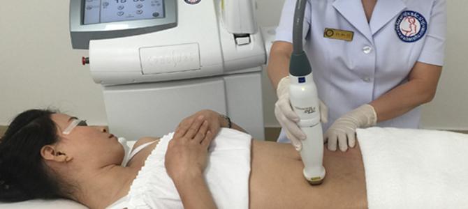 Điều trị rạn da hiệu quả bằng Laser Icon