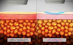 LIPOcel animation - Giảm mỡ bằng HIFU